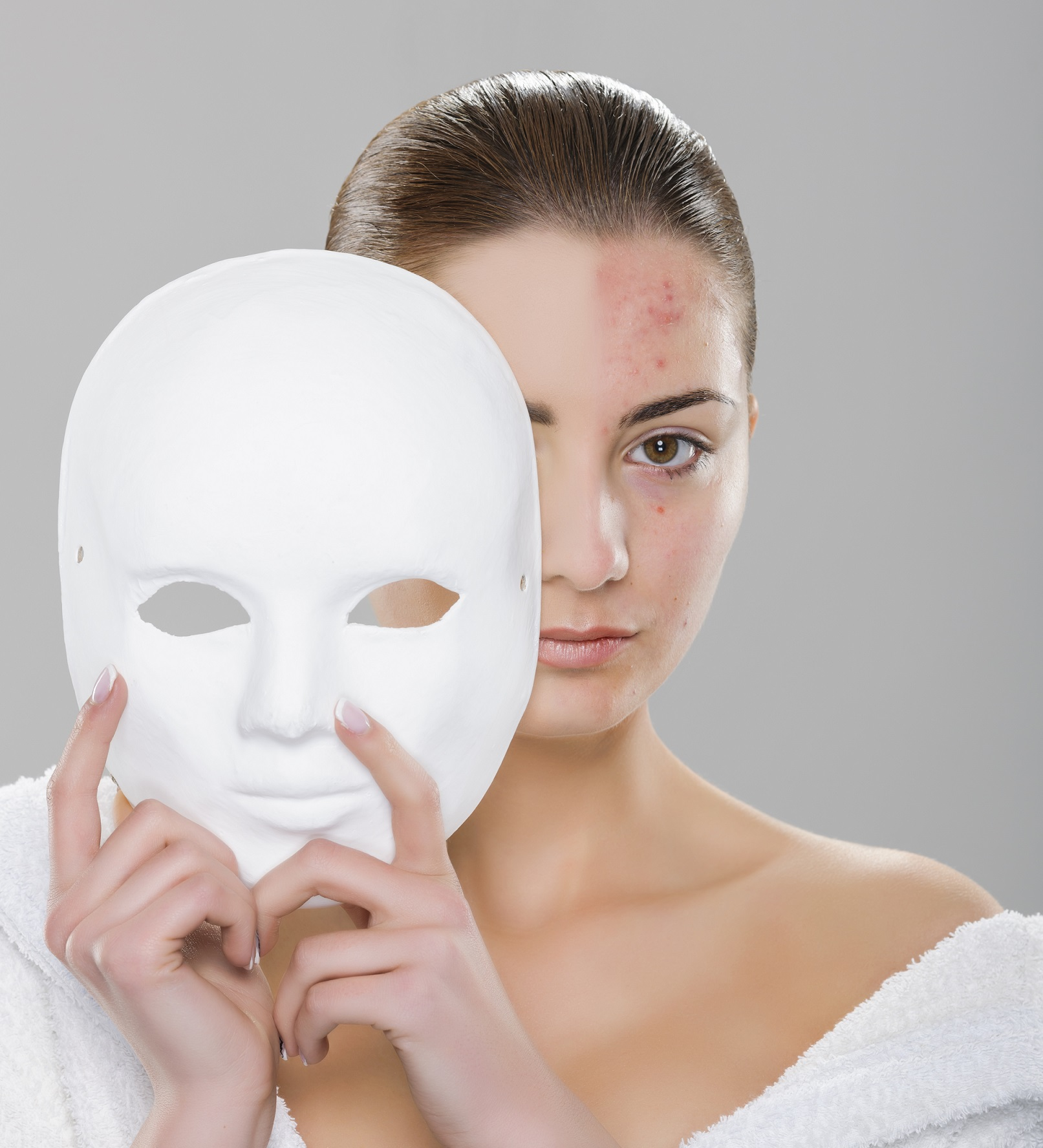 girl with acne and white mask