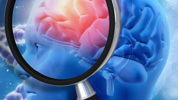 Chronic Inflammation in Alzheimer's Disease