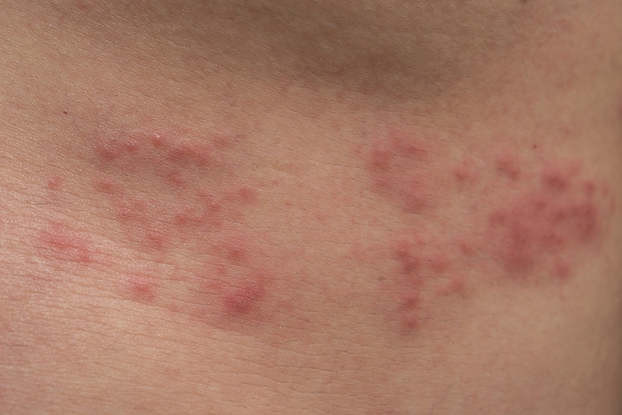 Closeup of body skin with Herpes Zoster (Shingles)