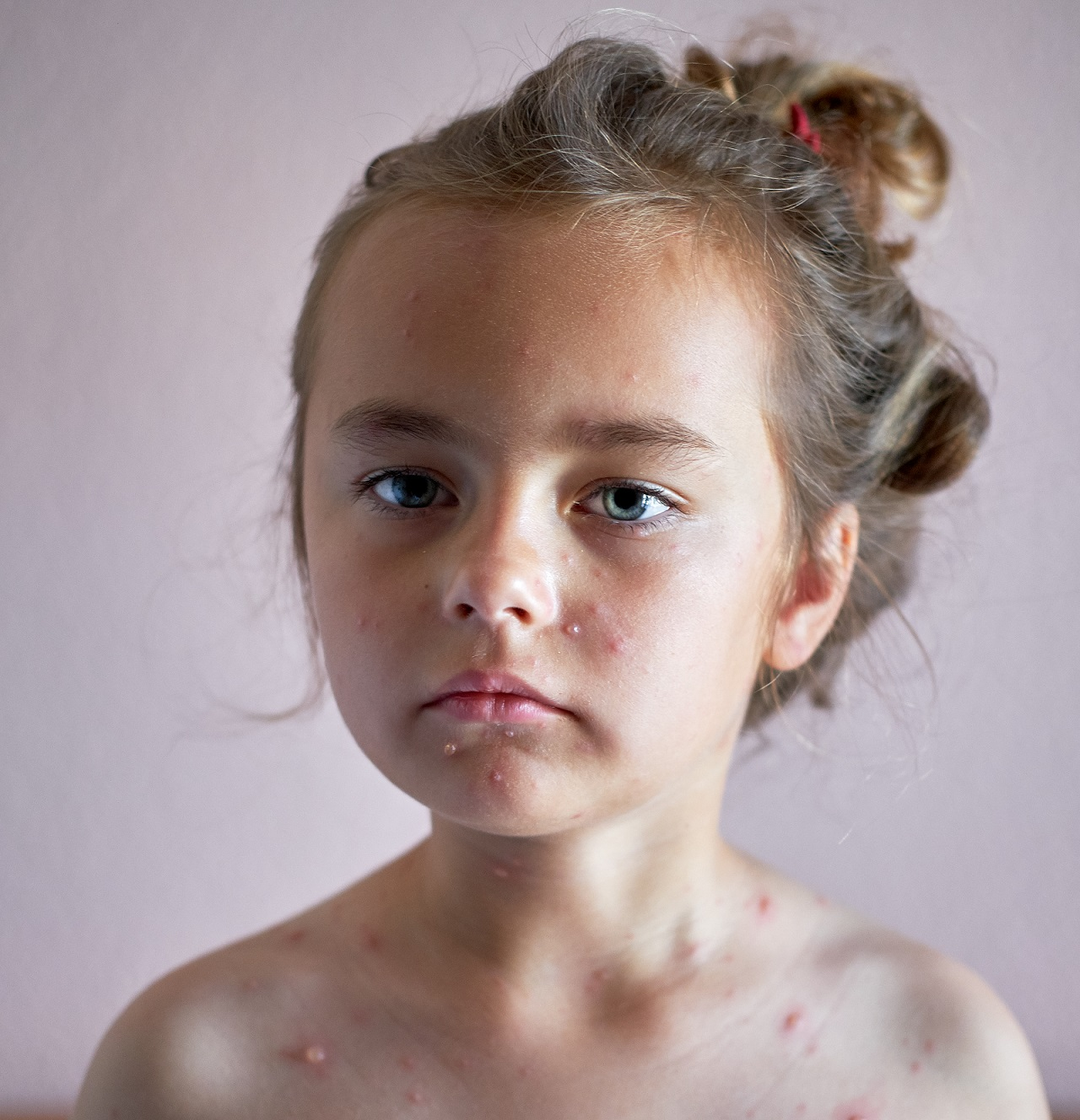 Little girl with chickenpox