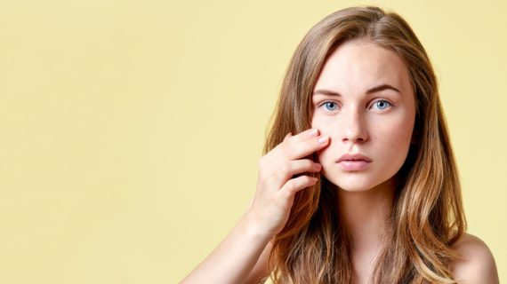 Vaccine for Acne Targets Bacteria in the Skin's Microbiome